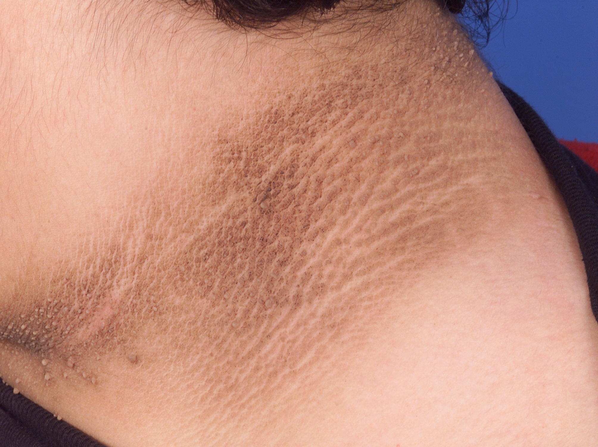 Почему шелушится лицо у беременной