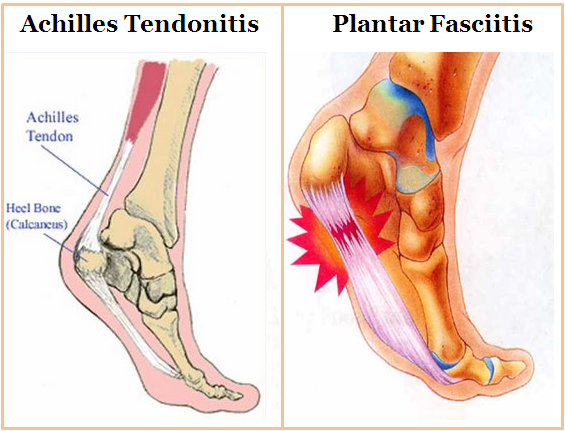 Achilies Tendinitis China Pdf Ppt Case Reports