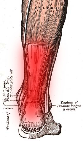Achilies Tendinitis