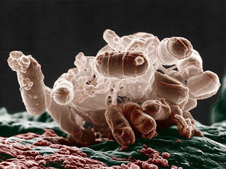 Acinetobacter Infection