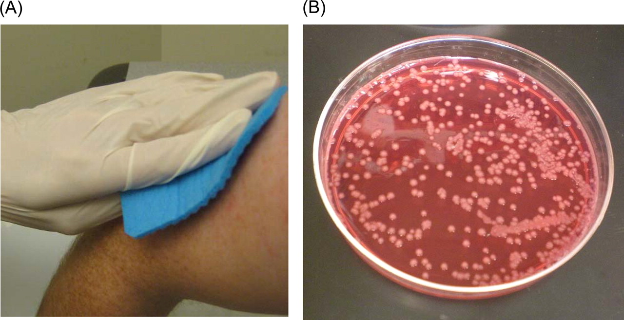 acinetobacter baumannii article review Evaluation of a modified cleaning procedure in the prevention of carbapenem-resistant acinetobacter baumannii clonal spread in a burn intensive care unit using a high-sensitivity luminometer casini b, selvi c, cristina ml, totaro m review pmid: 27795305 free article similar articles.