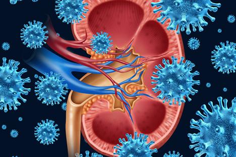 Acute kidney failure