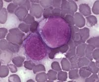 Acute lymphocytic leukemia