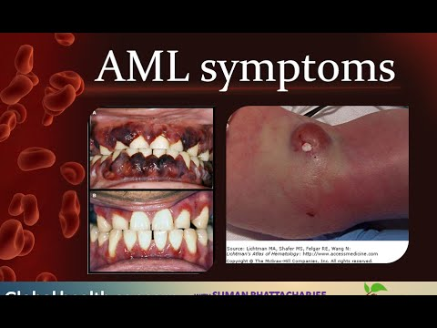 in adult Acute myelogenous leukemia