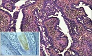 Adnexal tumors