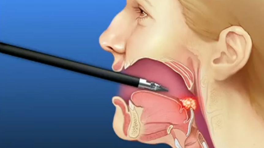 Alveolar Osteitis