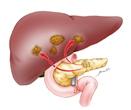 Ampullary Cancer