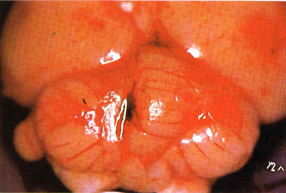 Angiostrongylus Infection