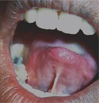 Ankyloglossia