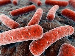 Antibiotic-Associated Colitis