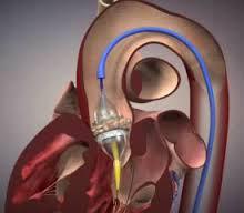 Aortic Valve Disease