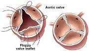 Aortic Valve Regurgitation