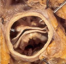 Aortic Valve Stenosis