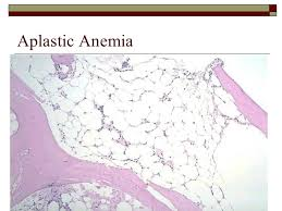 an analysis of the symptoms of anemia 'sepsis-related anemia' is absent at hospital presentation a retrospective cohort analysis geertje jansmaemail author, fellery de lange, w peter kingma, namkje ar vellinga, matty koopmans, michael a kuiper and e christiaan boerma bmc anesthesiology201515:55 0035-7.