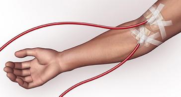 Arteriovenous fistula