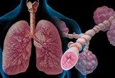 Asthma attack