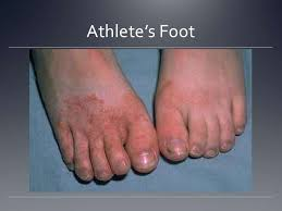 Athletes foot