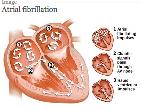 Atrial fibrillation