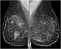 Atypical hyperplasia of the breast