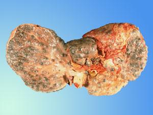 Autoimmune Hepatitis Spain Pdf Ppt Case Reports