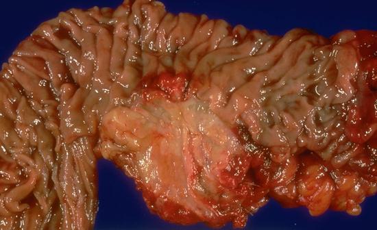 Autoimmune pancreatitis | Belgium| PDF | PPT| Case Reports ...  Autoimmune panc...