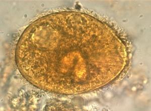 Balantidium Infection