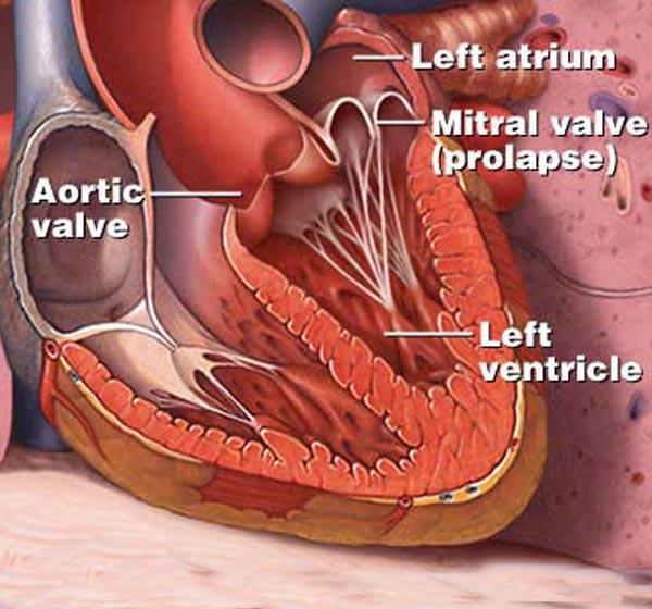 Ballooning mitral valve syndrome