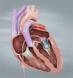Ballooning mitral valve syndrome