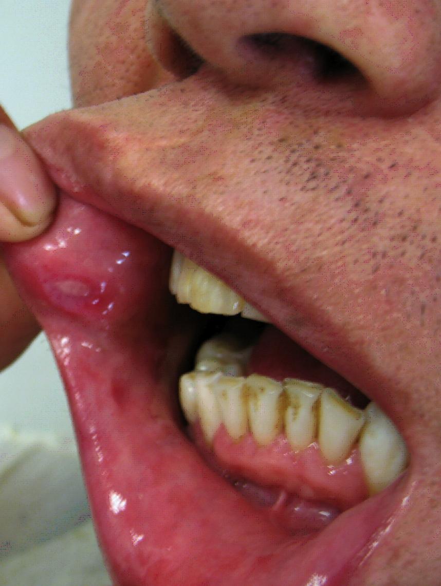 Behcets disease