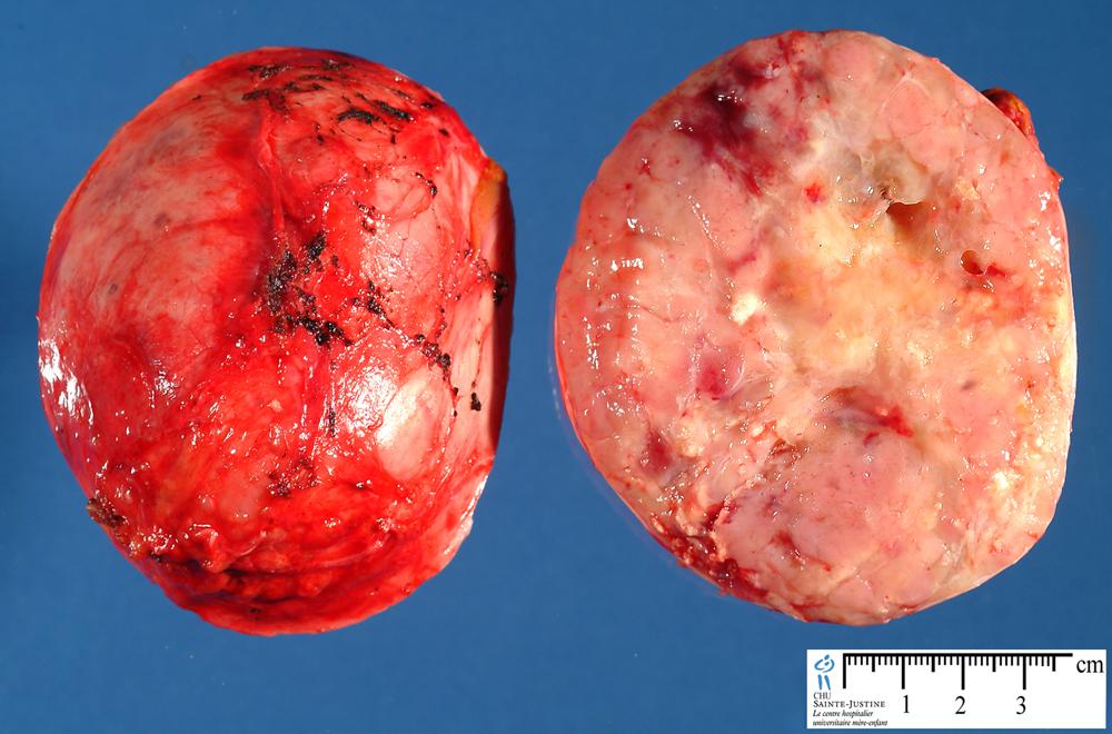 Benign adrenal tumors