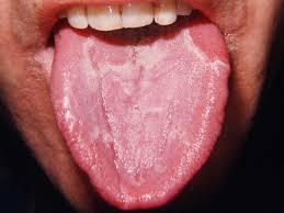 Benign migratory glossitis