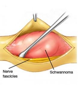 Breast benign tumors for radiation