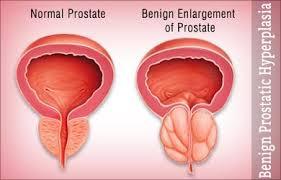 Benign prostatic hyperplasia