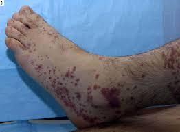 Bergers disease