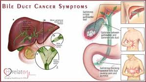 Bile Duct Cancer Italy Pdf Ppt Case Reports