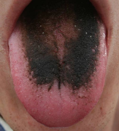 Black hairy tongue