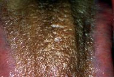 Black hairy tongue