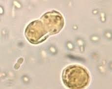 Blastocystis Hominis Infection
