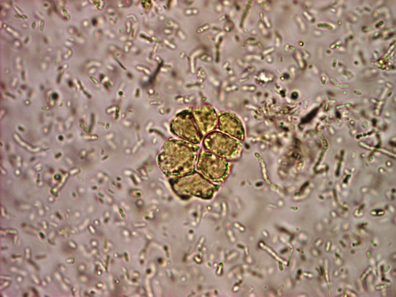 Blastocystis Infection