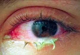 Blocked tear duct