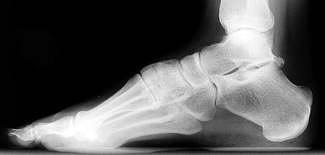 Bone spurs