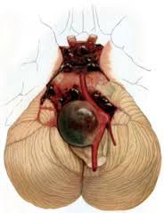 Brain aneurysm