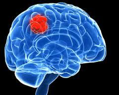 Brain tumor