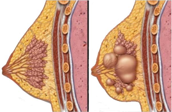 Breast Cysts