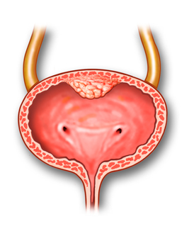 Cancer of the ureter