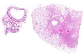 Capillariasis