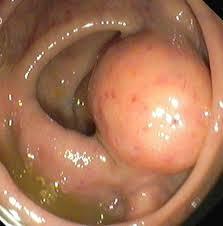 Carcinoid tumors