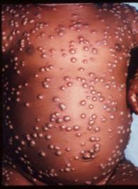 Carrions disease