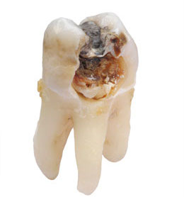Cavities/tooth decay