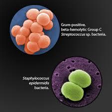 Cellulitis   Germany  PDF   PPT  Case Reports   Symptoms ...